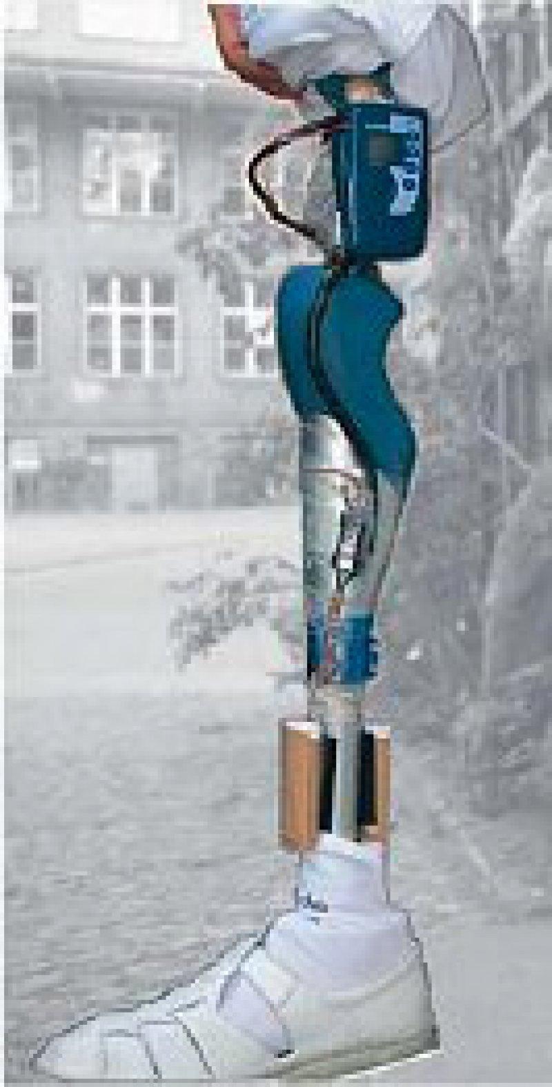 Das Messsystem ist in die Prothese integriert. Foto: TU Berlin/FG Medizintechnik