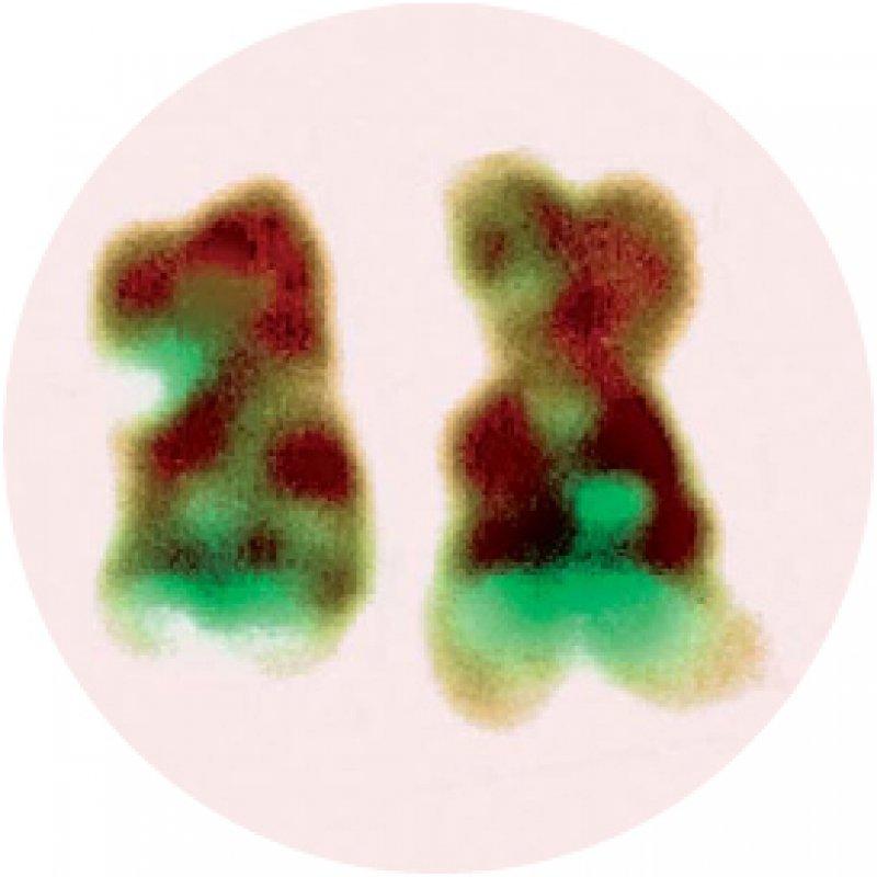 Das Philadelphia- Chromosom (rechts im Bild) entsteht durch Translokation zweier Chromosomenabschnitte und ist Ursache für Leukämien. Foto: Science Photo Library