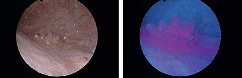 Oberflächlicher Blasentumor, aufgenommen mit der Standard-Weißlicht-Zystoskopie: Der Krebs ist zu erkennen (Abbildung links). Rechts: Derselbe oberflächliche Blasentumor, aufgenommen mit der Blaulicht-Zystoskopie. Zu sehen sind der Tumor und seine Ausläufer. Fotos: umg
