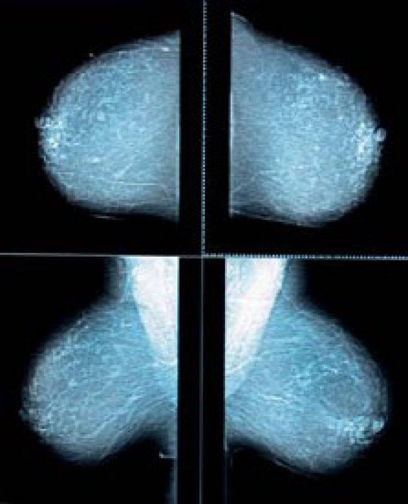 Mit der Qualität des Screenings ist die Kooperationsgemeinschaft Mammographie zufrieden. Foto: ddp