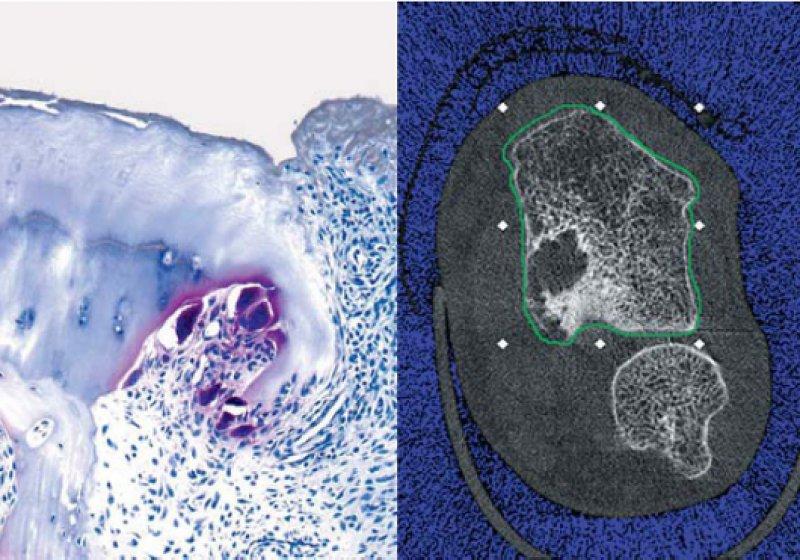 Histopathologie (links) und Computertomographie (rechts) einer Knochenschädigung durch Entzündungsgewebe bei rheumatoider Arthritis. Fotos: Universitätsklinikum Erlangen, Medizinische Klinik 3