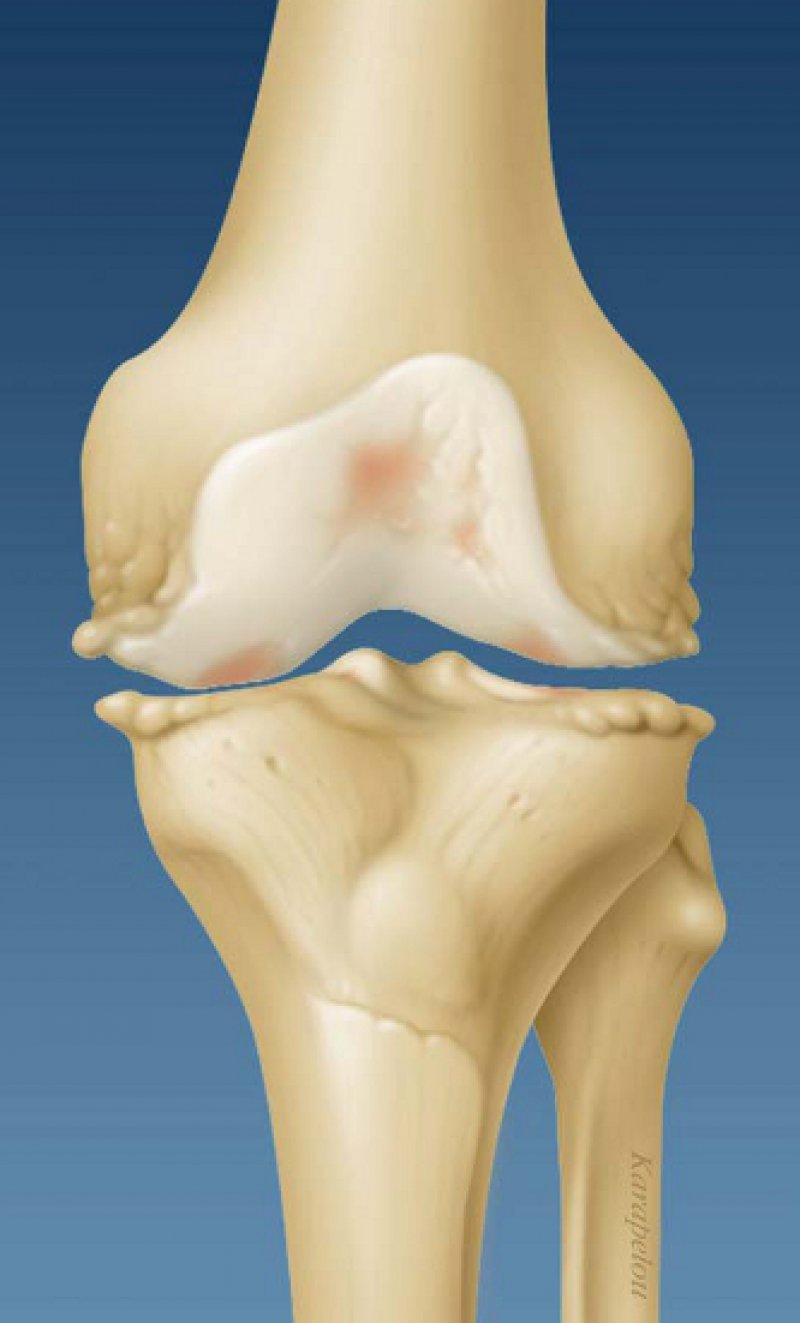 Typische Befunde der Arthrose: Verschmälerung des Gelenkspaltes, Bildung von Osteophyten, subchondrale Knochensklerose, Zysten und Knochenschwund. Foto: mauritius images