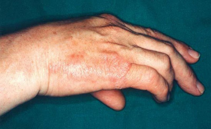 Handekzeme stellen keine homogene Krankheitsentität dar. Chronische Fälle erfordern lang dauernde Krankschreibungen. Foto: Archiv