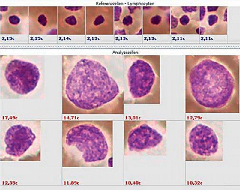 DNA-Bild-Zytometrie einer EUS-FNP des Pankreas für die Diagnose. Obere Reihe: Lymphozyten mit diploidem Chromosomensatz (ca. 2c), untere Reihen: Tumorzellen mit Stammlinienaneuploidie (> 2c) und zytologischen Zeichen eines Karzinoms. Foto: Wellmann