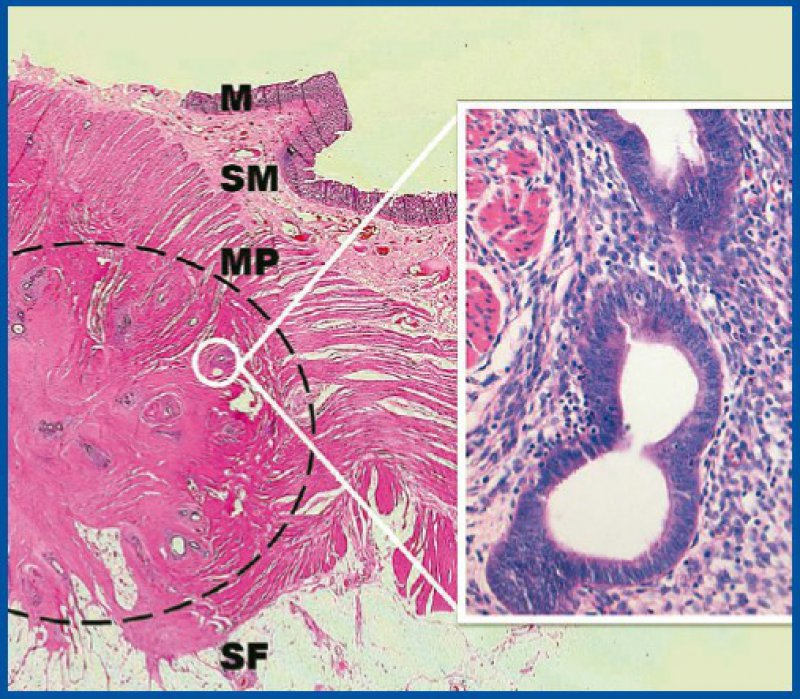 Abb. 2, Links Lupenansicht: Typische Darmwandschichtung. Der Kreis markiert einen knotigen Tumor in der äußeren Darmwand. Rechts Histologie: Typisches Endometrium