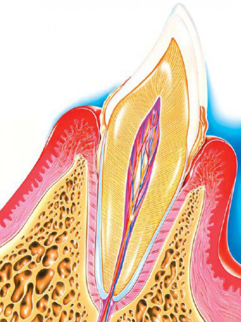 Die Parodontitis beginnt mit einer Entzündung des Zahnfleisches (Gingivitis). Es schwillt an, ist stark gerötet und blutet leicht. Da ansonsten zunächst keine Schmerzen auftreten, ist das Bluten ein wichtiges Alarmsignal. Foto: SPL-Agentur Focus