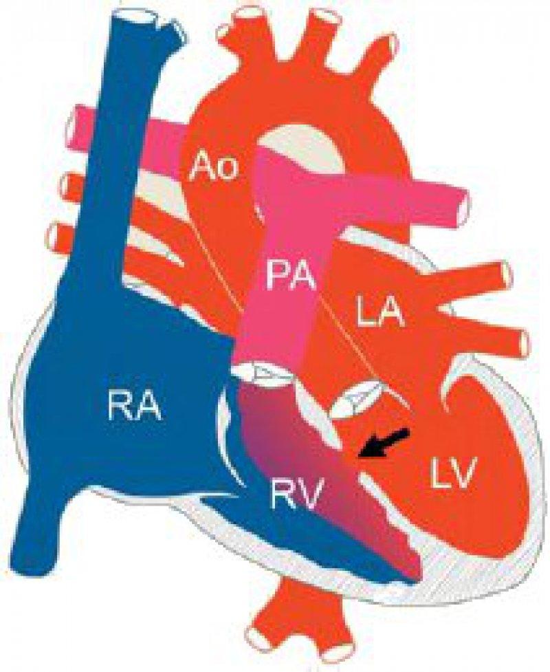 Der Ventrikelseptumdefekt ist der häufigste Herzfehler und kann sehr unterschiedlich im interventrikulären Septum lokalisiert sein. Ao: Aorta, PA: Pulmonalarterie; LA/RA: linker/ rechter Vorhof; LV/RV: linker/rechter Ventrikel