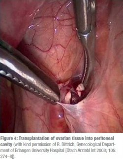 Transplantation of ovarian tissue into peritoneal cavity (with kind permission of R. Dittrich, Gynecological Department of Erlangen University Hospital [Dtsch Arztebl Int 2008; 105: 274–8]).