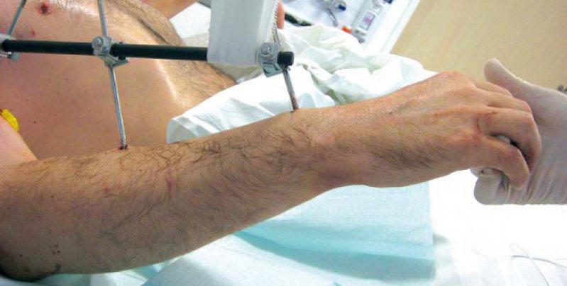 Neue Arme für einen Patienten (hier kurz nach der Operation), der die eigenen bei einem Unfall verloren hatte. Aktuell geht es dem Patienten gut – mehr als drei Jahre nach der Transplantation an der TU München. Foto: Klinikum rechts der Isar, TU München