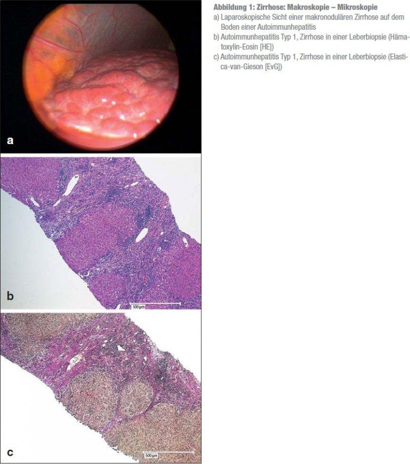 Indikationen zur Leberbiopsie
