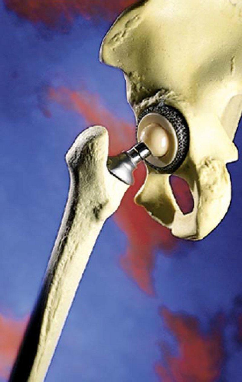 Mehr als 390 000 Operationen jährlich werden hierzulande in der Endoprothetik durchgeführt, davon entfallen etwa 210 000 auf künstliche Hüftgelenke. Foto: BVMed