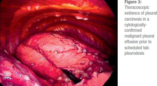 Ilrated Image Of Healthy Lung And Diseased