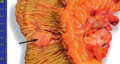Operationspräparat: kleiner Primärtumor (Pfeil) und große mesenteriale Lymphknotenmetastasen