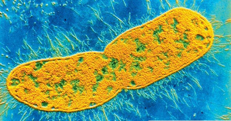 Klebsiellen bilden häufig Extended- Spectrum-Betalaktamasen. Sie sind auf diese Weise resistent gegen Penicilline, Cephalosporine sowie Monobactame. Foto: CNRI/SPL Agentur Focus