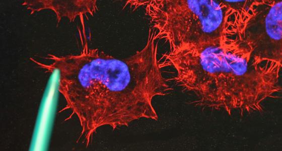 Melanomzellen /dpa
