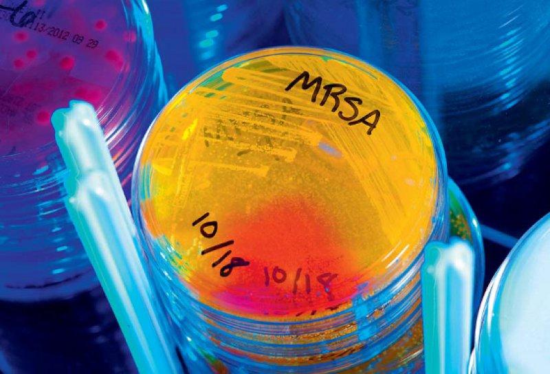 Das Thema MRSA stellt sich in den einzelnen Einrichtungen des Gesundheitswesens unterschiedlich dar und erfordert ein differenziertes Handeln. Foto: CDC/Melissa Dankel