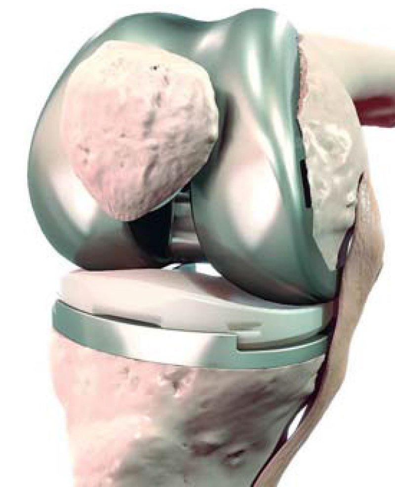 Einsatz eines künstlichen Kniegelenks: Der Erfolg hängt nach Ansicht des Bundessozialgerichts auch von der Häufigkeit des Eingriffs ab. Foto: BVMED