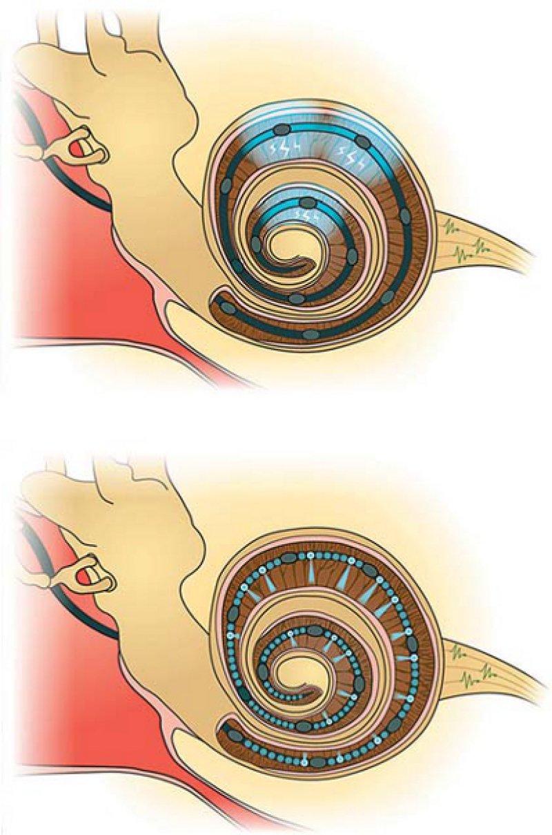 Funktionsweise des Cochlea-Implantats: Oben: Elektrisches Implantat in der Hörschnecke mit zwölf Elektrodenkontakten, von denen sich der Strom weit ausbreitet. Unten: Künftiges optisches Implantat mit dutzenden Mikroleuchtdioden, deren Licht auf die Nervenzellen in der Mitte der Hörschnecke fokussiert wird. Grafiken: umg
