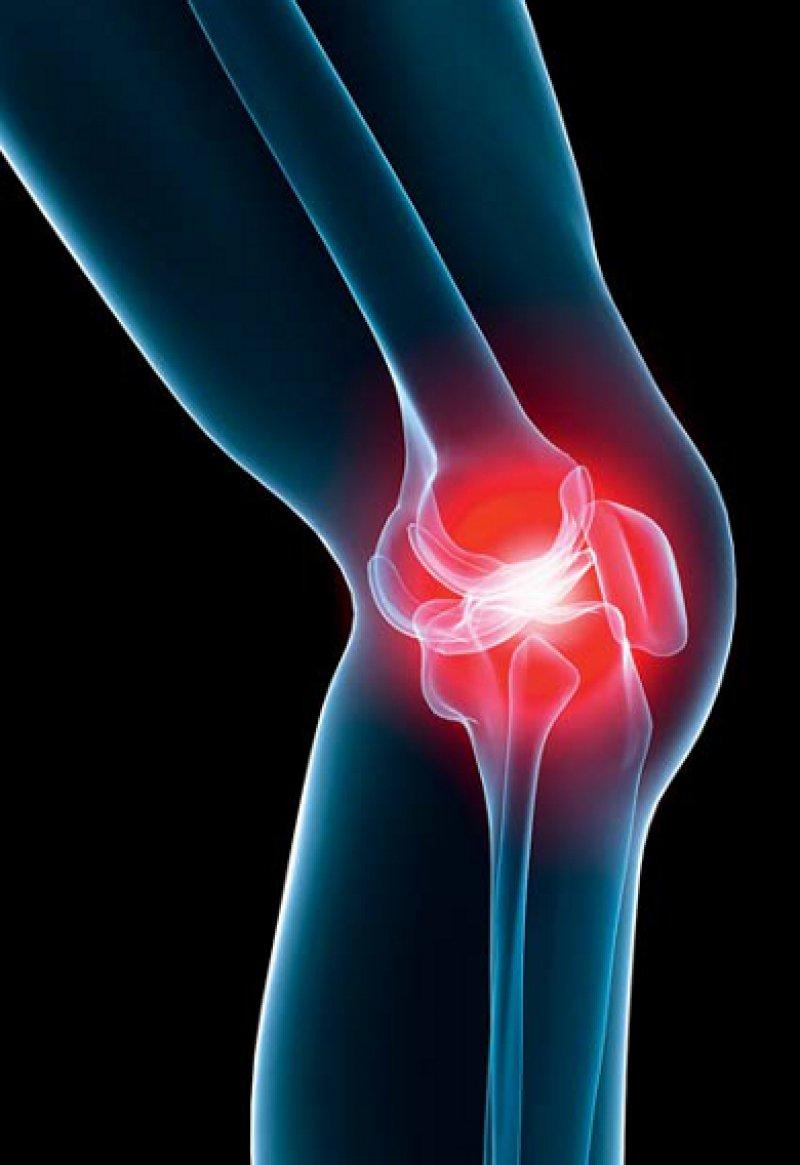 Arthrose – hier im Kniegelenk – ist die häufigste Gelenkerkrankung in Deutschland. Foto: Fotolia/Sebastian Kaulitzki