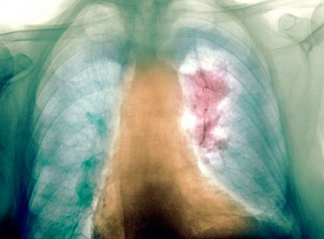 Lungenkarzinom