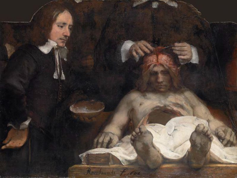 """Rembrandt Harmensz. van Rijn: """"Anatomische Vorlesung des Dr. Deyman"""", 1656, Öl auf Leinwand (Fragment), 100 × 134 cm: 24 Jahre nach seiner viel bewunderten """"Anatomischen Vor - lesung des Dr. Nicolaes Tulp"""" malte Rembrandt ein überwältigendes zweites Porträt einer öffentlichen Leichensektion. Auf dem erhaltenen Fragment – ein Teil des Gemäldes wurde 1723 bei einem Brand zerstört – sind nur noch Oberkörper und Hände des Arztes erkennbar. Er seziert das Gehirn des Toten, der vor ihm aufgebahrt liegt, während sein Assistent einen Teil der Schädeldecke in der Hand hält. Foto: Amsterdam Museum, Amsterdam"""