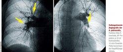 Seitengetrennte Angiografie der A. pulmonalis