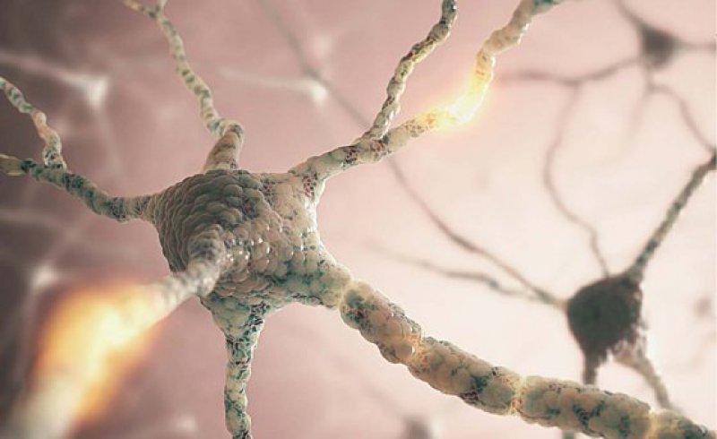 Etwa 100 Milliarden Nervenzellen formen das Gehirn des Menschen. Hypoglykämie reduziert ihre Aktivität wie spezielle EEG-Messungen (evozierte Potenziale) belegen. Bei einem Glukosespiegel im Blut unter 70 mg/100 ml (= 3,9 mmol/l) beginnt das Gehirn Gegenmaßnahmen einzuleiten. Foto: CanStockPhoto