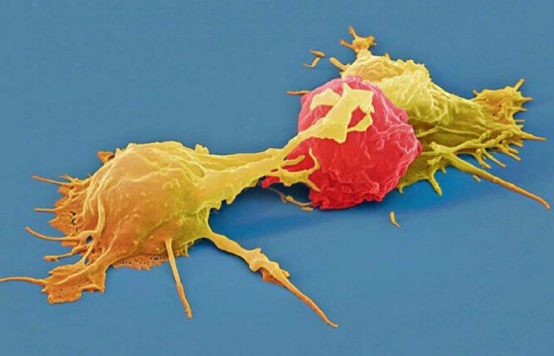 Eine Leukämiezelle (rot in der kolorierten elektronenmikroskopischen Aufnahme), umgeben von zwei zytotoxischen T-Zellen (gelb). Foto: Eyeofscience SPL Agentur Focus