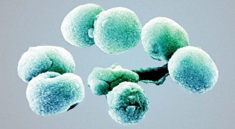 Streptococci pneumoniae. Foto: mauritius images