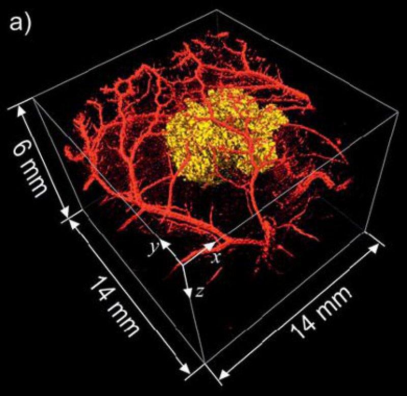 3-D-Darstellung von Tumorzellen durch neuen photoakustischen Scanner Foto: Jan Laufer