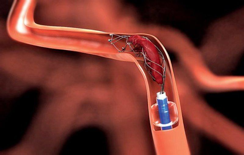 Die Thrombektomie per Stent-Retriever kommt für etwa zehn Prozent der Schlaganfallpatienten infrage. Die Lysetherapie bleibt weiterhin Standard. Foto: dpa
