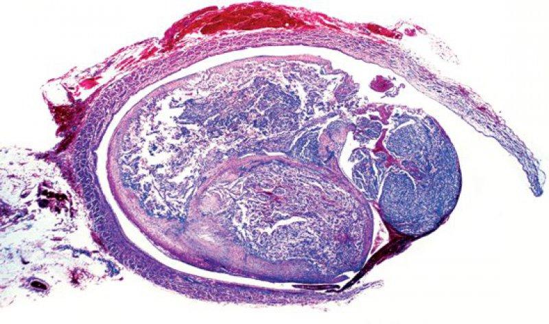 Histologischer Schnitt einer renalen Neoplasie unter dem Lichtmikroskop. Foto: mauritius images