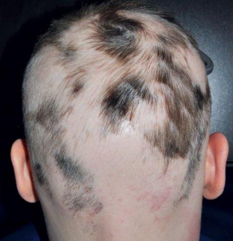 Haar und Kopfhaut