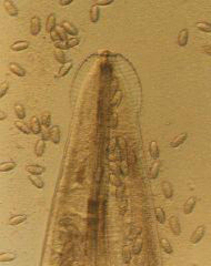 Mikroskopische Aufnahme des Vorderendes eines Weibchens von E. vermicularis mit bulbusartiger Anschwellung der Kutikula. Um das Weibchen herum zahlreiche ausgetretene Eier Foto: Prof. Heinz Mehlhorn