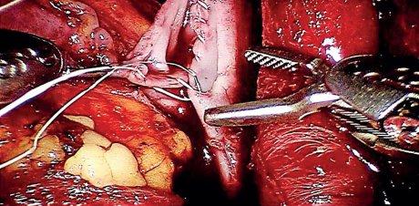 Roboterassistierte Eingriffe: Auch bei Transplantation der Niere