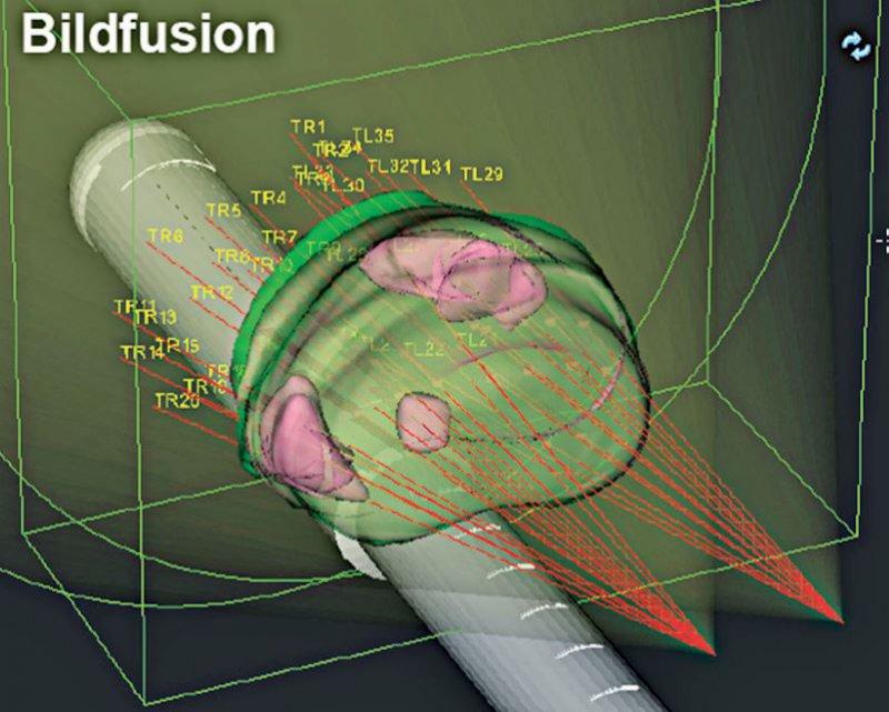 Unterschiedliche Bildgebungsmethoden (hier: MRT, PET/CT) werden mit dem Echtzeit- Ultraschallbild fusioniert, um verdächtiges Prostatagewebe optimal darzustellen. Foto: Universitätsklinikum Freiburg