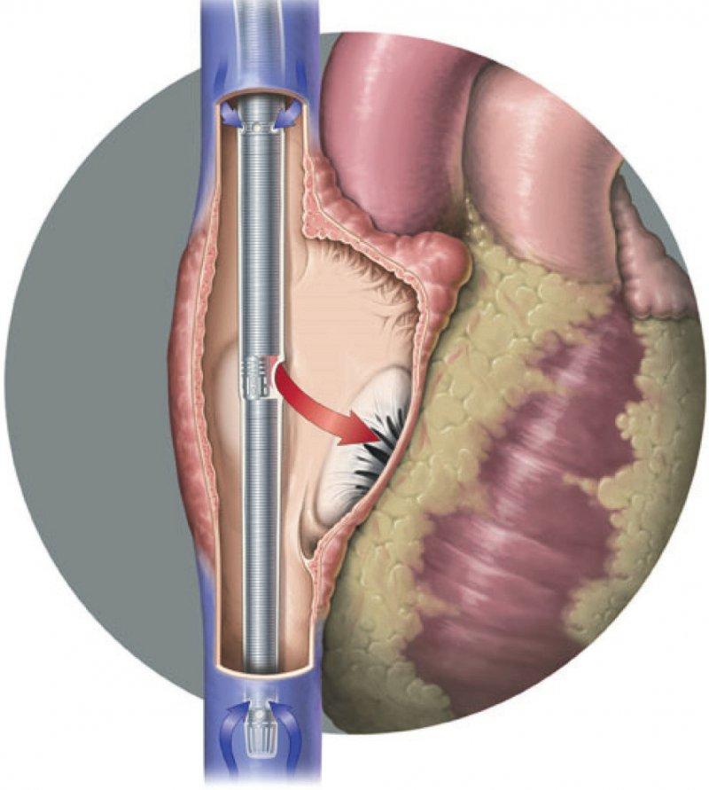 Doppellumen: Das Blut wird aus der V. cava in die ECMOMaschine (blau) gesaugt, dort oxygeniert und decarboxyliert und über das rote Lumen direkt in den rechten Vorhof gepumpt, wo es durch die insuffiziente Lunge in den großen Kreislauf fließt. Foto: Firma Maquet