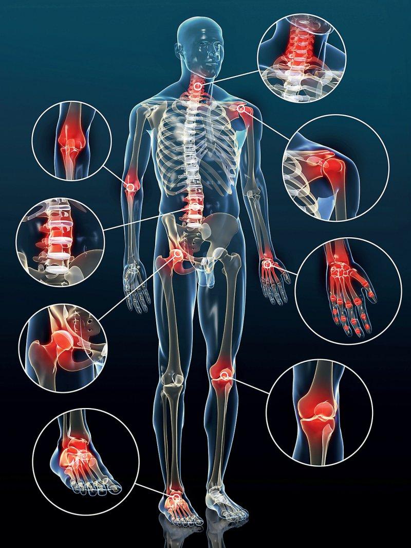 Prinzipiell kann jedes Gelenk von Arthrose betroffen sein: Sprunggelenk, Ellenbogen oder Daumen beispielsweise. Am häufigsten kommt der Gelenkverschleiß jedoch an den unteren Extremitäten und der Wirbelsäule vor. Foto: Fotolia/Sagittaria