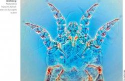 Photomikroskopische Aufnahmen von Sarcoptes scabiei. Foto: mauritius images