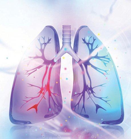 Lungenversagen