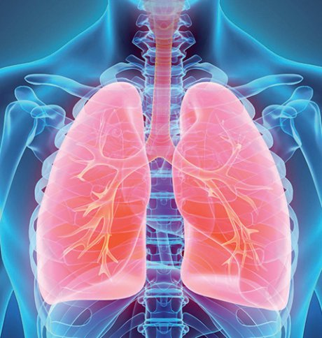 Lungentransplantation