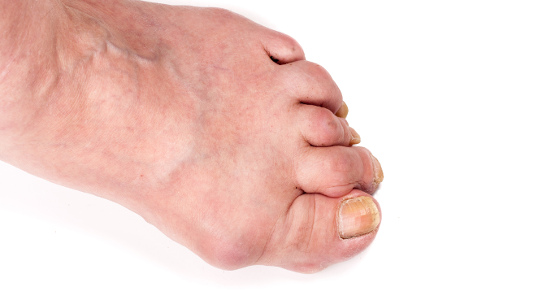 Treatment Options for Gout