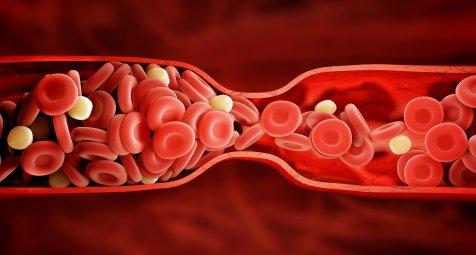 Hypercholesterinämie: ANGPTL3-Antikörper halbiert LDL-Cholesterin...