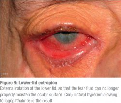 Lower-lid ectropion