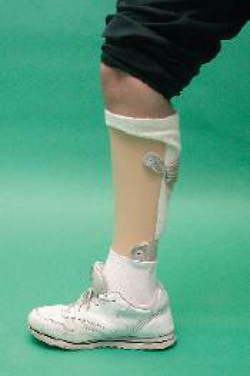 Klinisches Bild der Versorgungsmöglichkeit mit einer Unterschenkelorthese Foto: Fuhrmann