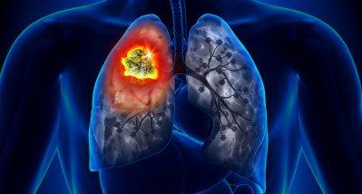 Warum auch Nichtraucher an Lungenkrebs erkranken