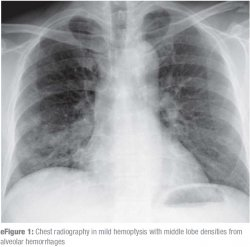 Chest radiography in mild hemoptysis with middle lobe densities from alveolar hemorrhages