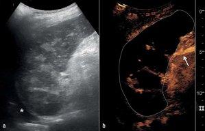 Acute Infarction Of The Spleen 26052017