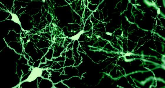 Fluoreszenzmarkierte Neuronen /Juan Gaertner, stock.adobe.com