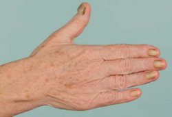 Yellow-Nail-Syndrom